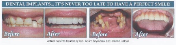before and after teeth