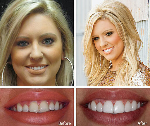 the illusion and appeal of dental veneers
