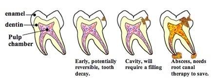 cavity can reverse