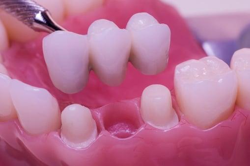 dental-bridges-preparation