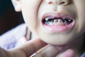 Baby teeth decay