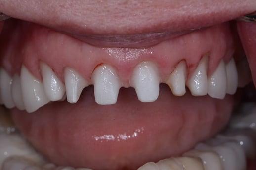 Teeth Veneers Strip Away Precious Natural Enamel
